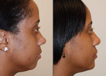Rhinoplasty with bridge implant and chin implant before 95078