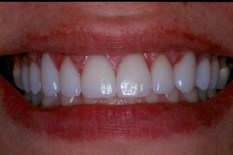 Upper Porcelain Veneers and Porcelain Crowns 370566