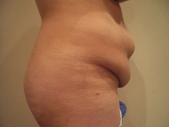 Tummy Tuck before 143465