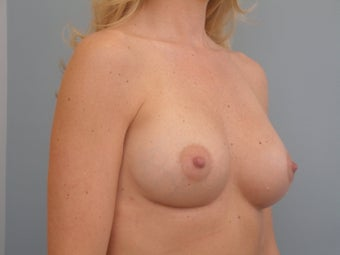 Complex Revisionary Breast Surgery-implant exhange after deflation 339525