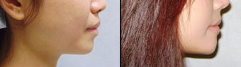 Chin Augmentation before 649425