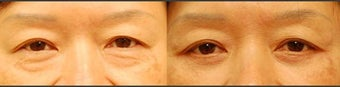 Lower Eyelid Surgery before 454039