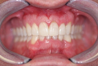 Invisalign after 372718