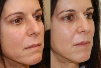 Lip Augmentation with Silikon-1000 before 407823
