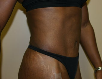 Tummy Tuck after 245219