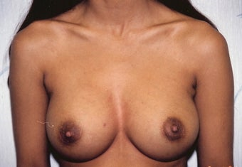 Breast Augmentation after 260791
