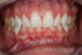 Invisalign before 415016