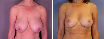 Breast Reduction before 271110