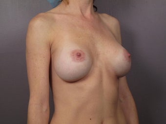 Breast Implant Revision before 622832