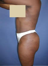 Body Contouring with Liposuction after 133795