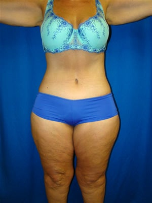 Extended Tummy Tuck Surgery