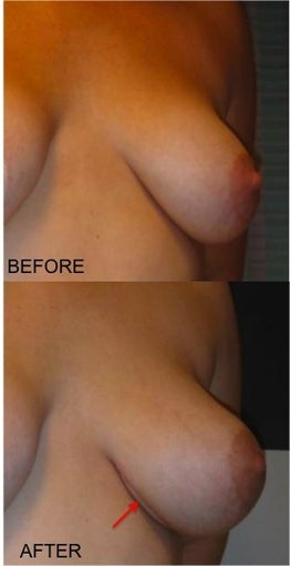 "LSGAP ""Love Handle"" Flap Breast Reconstruction after 416806"