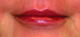 Lip augmentation after 369093