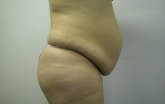 Abdominoplasty  before 607511