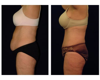 Tummy Tuck / Abdominoplasty before 54971