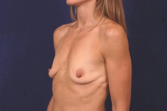 Breast Augmentation before 463748