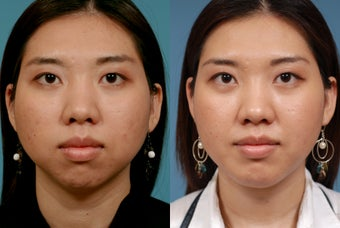 Chin Augmentation after 409091
