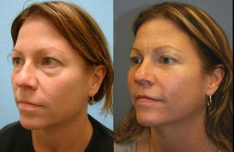 Lower Blepharoplasty before 594522