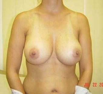 Breast Augmentation  after 131650