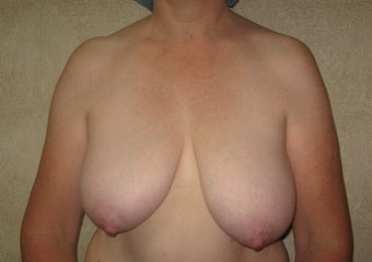 Breast reduction with Liposuction before 142400