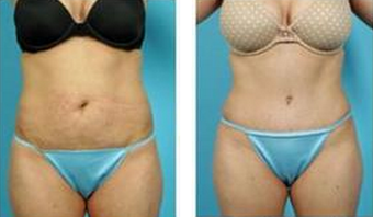 Tummy Tuck (Abdominoplasty) before 324843