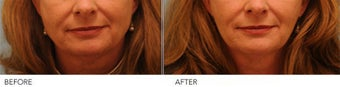 Botox Jaw (masseter) reduction before 319428