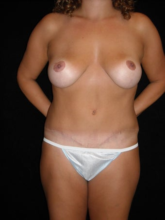 Abdominoplasty (tummy tuck) and mastopexy (breast lift)