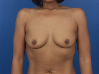Breast Implants before 466403
