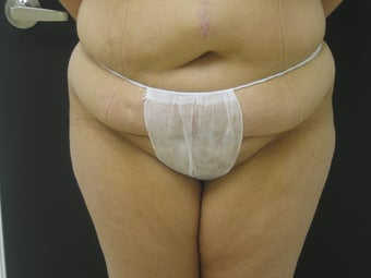 Tummy Tuck After Gastric Bypass before 523251