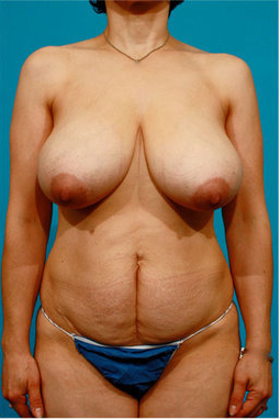 Tummy Tuck and Breast Reduction before 73740