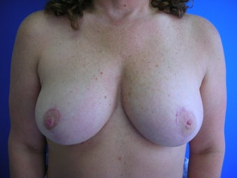 Bilateral Breast Reduction after 513566