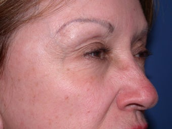 Before & After Botox Treatment after 48604