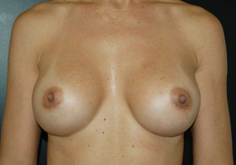 Breast Augmentation after 466885