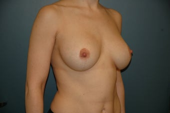 Breast lift with augmentation after 165879