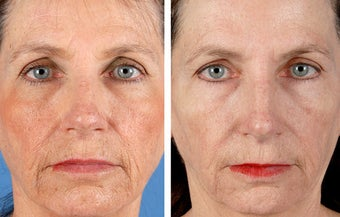 Active FX Fractional Laser Resurfacing before 254010