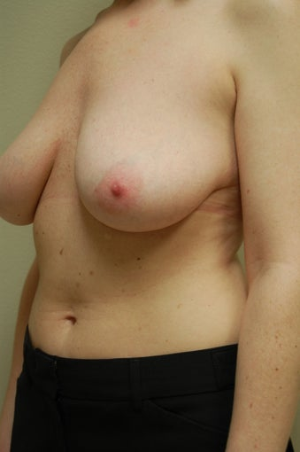 Breast Lift before 510824