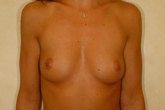 Breast Augmentation before 84870
