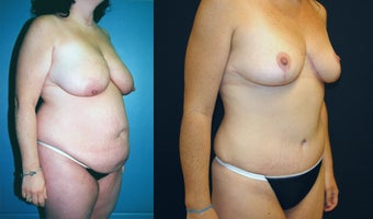 Breast Lift, Tummy Tuck and Liposuction before 350985