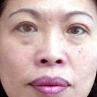 Asian Eyelid Surgery after 448672