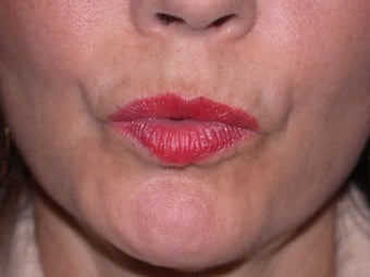Before and After Botox to Upper Lip Lines after 53817