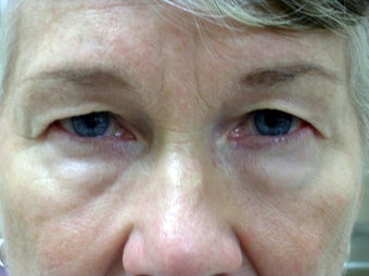 Upper and Lower Eyelid Blepharoplasty before 239944