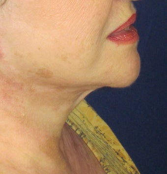 Neck Lift after 379497