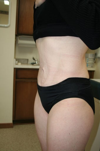 Tummy Tuck after 73263