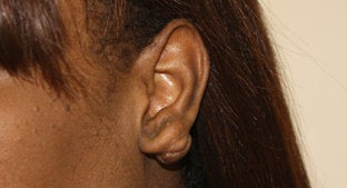 Earlobe Keloid  before 494466