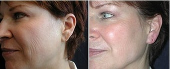 Juvederm Ear LobeTreatment before 6390
