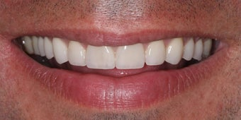 Veneers along with crowns after 48661