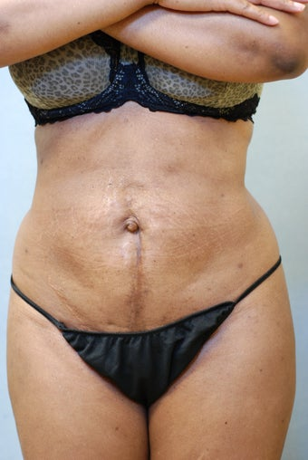 SmartLipo after 356692