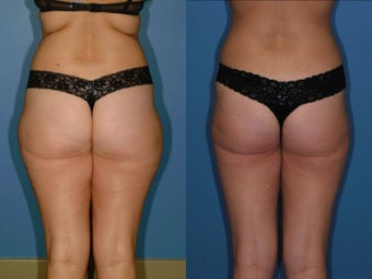 Liposuction - Hips and Thighs after 131866