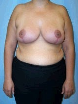Breast Reduction Surgery after 146631