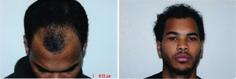 DIFF ANGLES -  Hair Transplant  before 428531